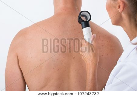 Doctor Examining Acne Skin On Patient's Back