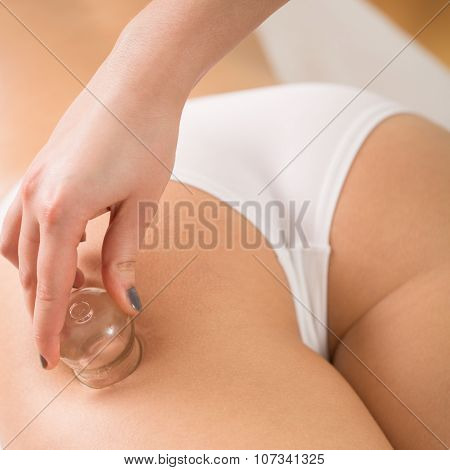Beautician Using Chinese Cupping