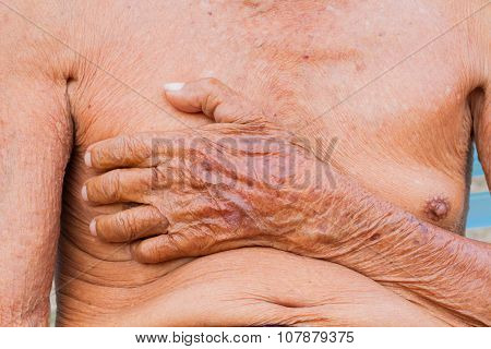 Closeup Asian Senior Man Chest With Texture Of Brown Wrinkle Hand