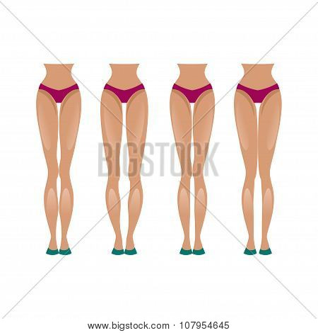 Slender And Crooked Legs. Vector Illustration