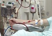 stock photo of dialysis  - patient helped during dialysis session in hospital - JPG