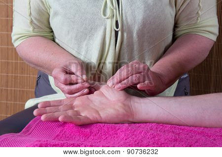 Close-up Of A Man's Hand Receiving Acupuncture Treatment
