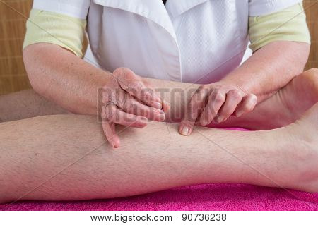 Woman Acupuncturist Prepares To Tap Needle On Scarf Of A Man
