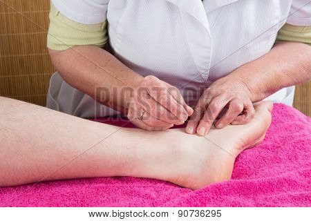 Acupuncturist Prepares To Tap Needle On The Foot Of A Man