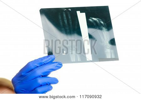 Female Doctor Examining X-ray Images