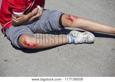 Legs injuries