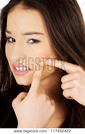 Teenage woman squeezing pimple.