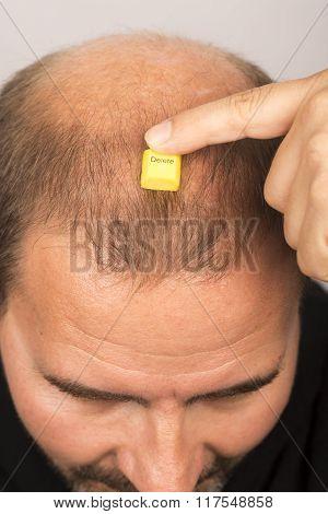 man baldness alopecia hair loss