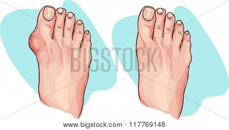 Vector Illustration Of Bunion Before And After Operation
