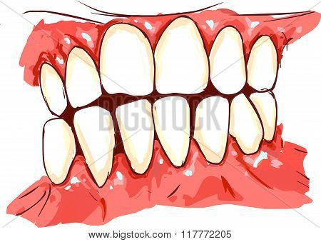 White Backround Vector Illustration Of A Gum Disease