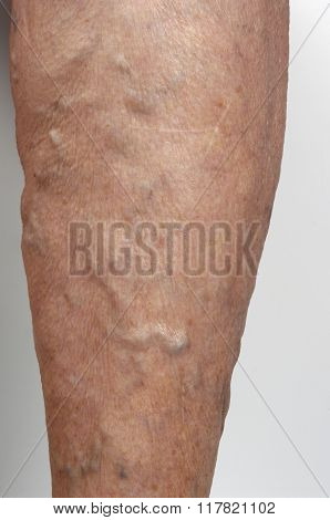 Varicose Veins In The Leg Of A Woman