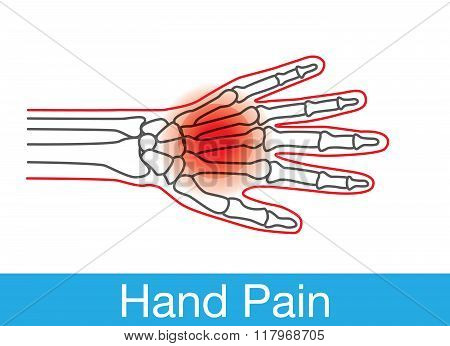 Hand pain outline