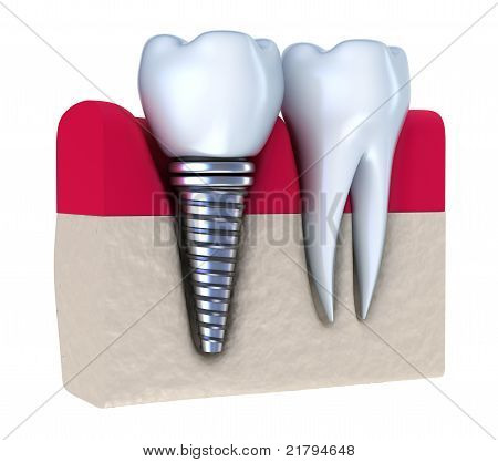 Dental implant - implanted in jaw bone. Isolated on white