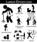 stock photo of scoliosis  - Lumbar Spondylosis symptoms pictogram  - JPG