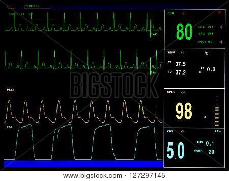 Electrocardiogram monitor screen, showing steady heartbeat and other vital functions