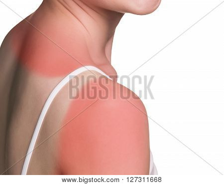 Sunburn female shoulder isolated on white background