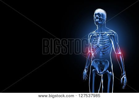 3D illustration of Skeleton with Painful elbows on black background