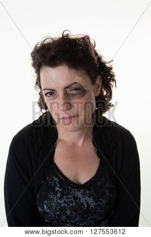 An Abused Woman Isolated On White Background
