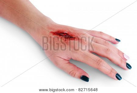 Injured hand with blood isolated on white
