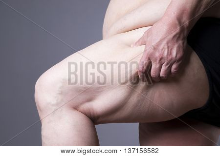Obesity female body fat woman legs close up on gray background