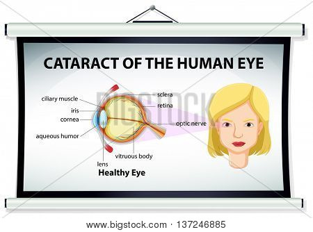 Diagram of cataract in human eye illustration