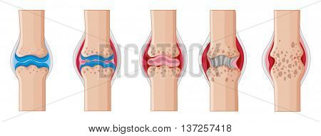 Rheumatoid arthritis in human joints illustration