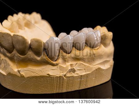 Human jaw made with plaster with ceramic dentures on black background