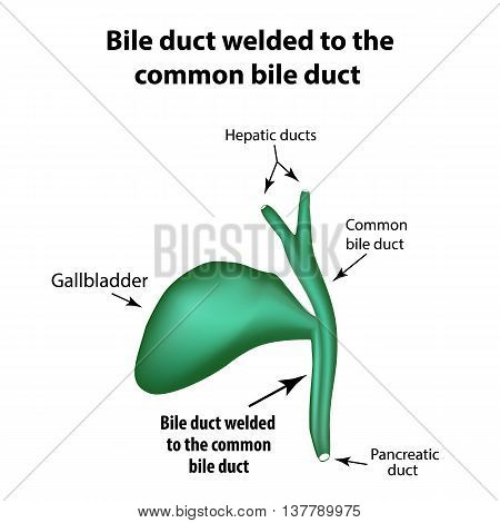 Bile duct welded to the common bile duct. Pathology of the gallbladder. Cholecystitis. The structure of the gallbladder. Infographics. Vector illustration on isolated background.