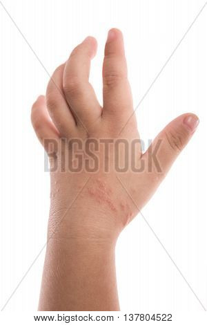 Eczema on baby's hand. Isolated white background