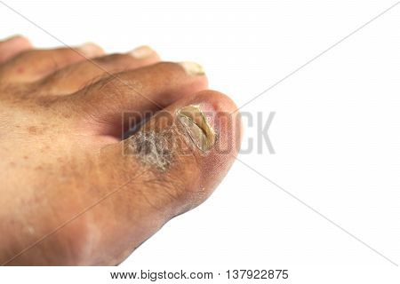A male foot with toe nail break