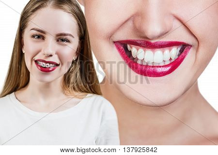 Young woman with perfect teeth before and after braces over blue background