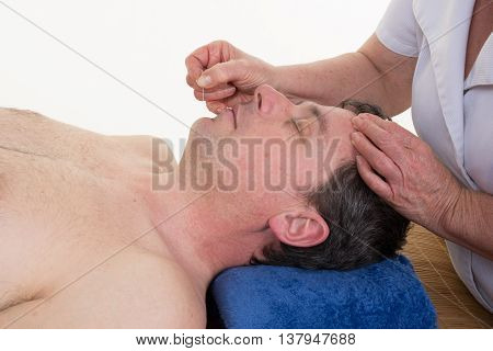 Detail Of A Man Receiving An Acupuncture Needle Therapy