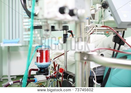 In The Middle Of Medical Equipment. Blood Oxygenator (ecmo) In The Icu Ward.