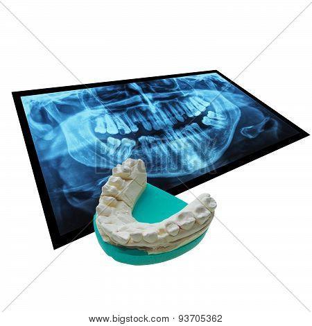 Xray Of Teeth With Positive Teeth Cast