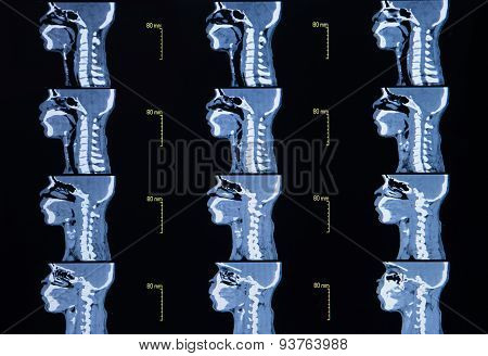 Series Of Images From A Computerized Tomography Of Neck (cervical Bone)