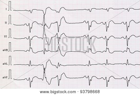 Ecg With Macrofocal  Myocardial Infarction And Pair Ventricular Premature Beats