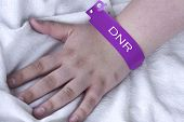 picture of resuscitation  - Do not resuscitate purple bracelet on a female patient in the hospital - JPG