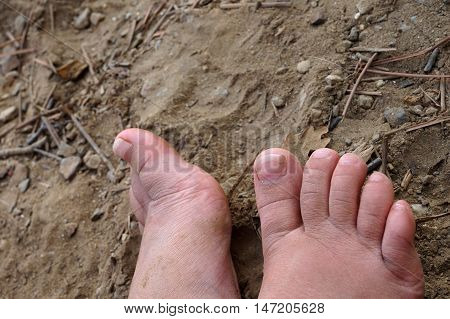 Small child's dirty feet on barren dry arrid ground