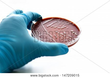 Colonies of bacteria in chocolate agar (culture medium plate)