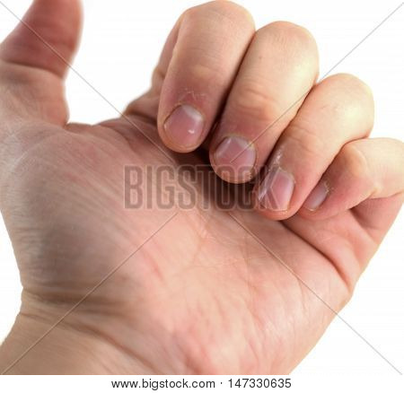 Macro closeup of fingers and dry cuticles of a young man in his 20s (isolated)