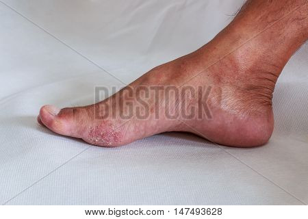 Foot is a fungal infection on background