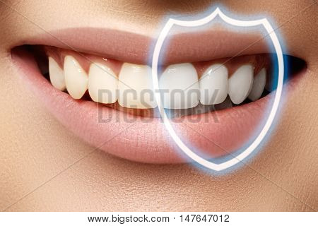 Perfect Smile Before And After Bleaching. Dental Care And Whiten