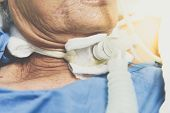 Patient Do Tracheostomy And Ventilator In Hospital poster