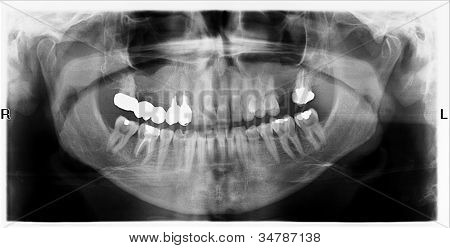 Teeth On X-ray Image