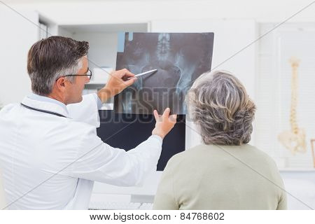 Male doctor explaining x-ray to female patient in clinic