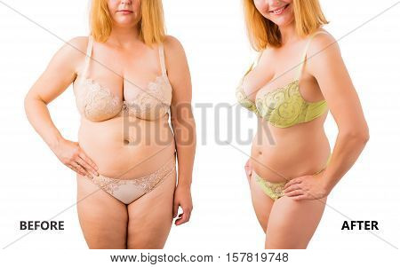 Woman posing in underwear before and after weight loss