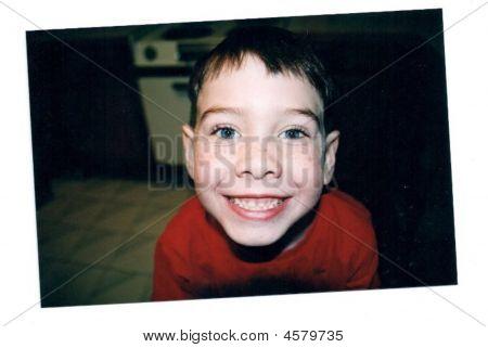Freckle_face