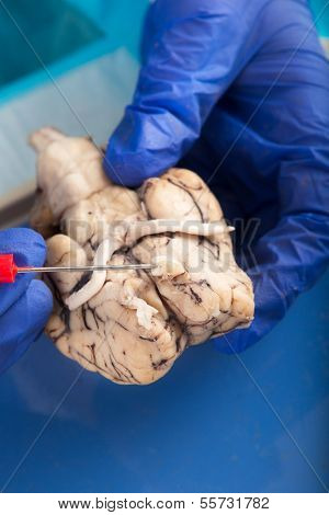 Physiology Student Examining A Cow Brain