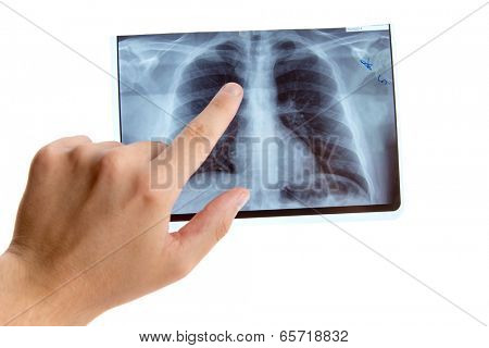 Male hand pointing on lung radiography, isolated on white background