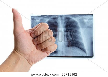 Male hand showing thumbs up next to lung radiography, isolated on white background